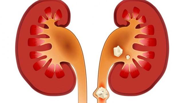 Διατροφική αντιμετώπιση της νεφρολιθίασης(Πέτρες στα νεφρά)